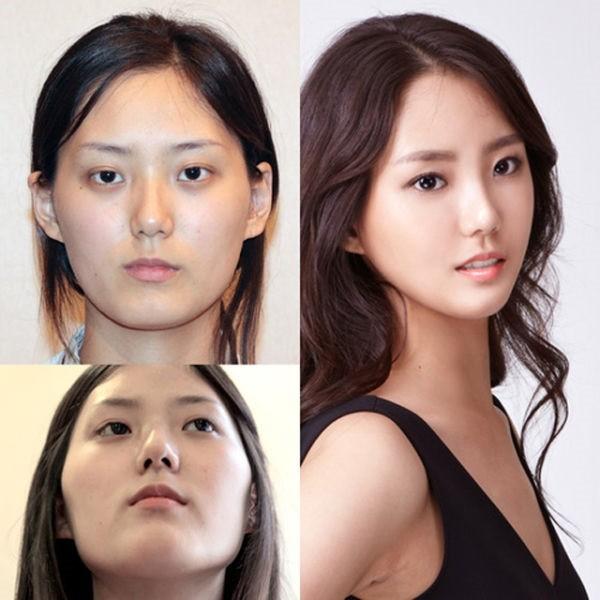 Thẩm mỹ khuôn mặt V line 3D - 60 phút để có gương mặt hoàn hảo 11