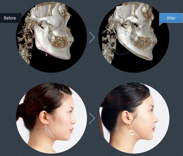 Độc đáo với 4 cách làm khuôn mặt thon gọn hơn 5