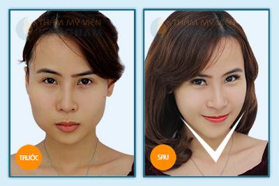 """""""Vịt hóa thiên nga"""" với công nghệ gọt mặt V-line 3D Hàn Quốc 11"""