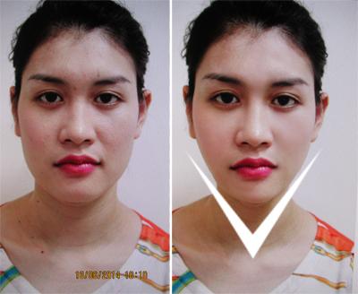 """""""Vịt hóa thiên nga"""" với công nghệ gọt mặt V-line 3D Hàn Quốc 22"""