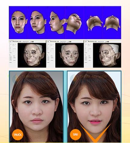 Đài truyền hình Hà Nội giới thiệu công nghệ thẩm mỹ khuôn mặt V-line 3D 123