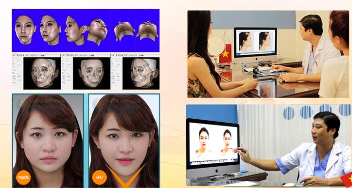 Đài truyền hình Hà Nội giới thiệu công nghệ thẩm mỹ khuôn mặt V-line 3D 3