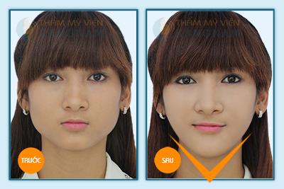 Đài truyền hình Hà Nội giới thiệu công nghệ thẩm mỹ khuôn mặt V-line 3D 5
