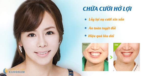 """Những nụ cười hở lợi kém duyên """"dìm hàng"""" sao Việt"""
