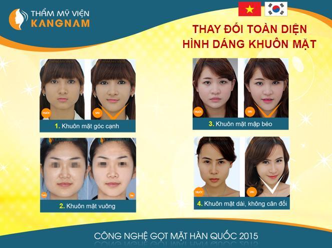 top-3-cong-nghe-dan-dau-xu-the-tham-my-2015-14