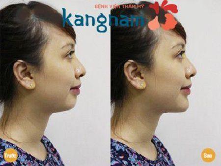 Phẫu thuật độn cằm tự thân tại Kangnam