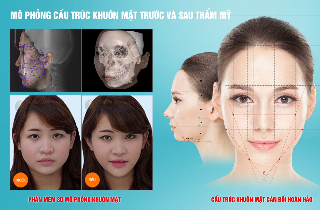 Thẩm mỹ khuôn mặt V-line 3D: Mặt đẹp như ý sau 4 tuần 55