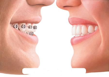 Những nguyên nhân nào làm cho răng bị hô? 3