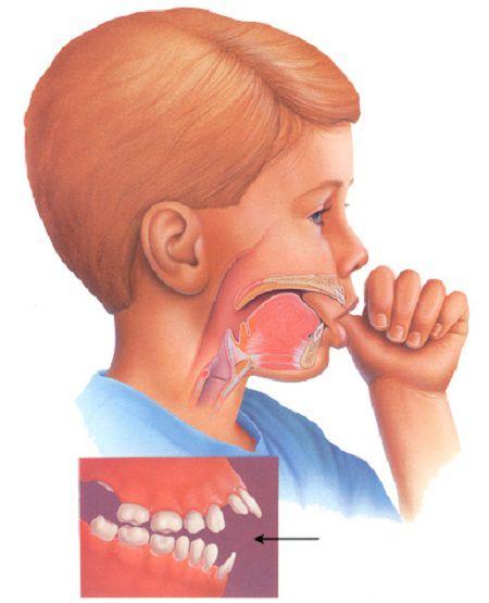 Tại sao răng bị hô do thói quen hàng ngày?
