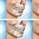 Nguyên nhân răng hô là gì? Chữa răng hô bằng cách nào hiệu quả?
