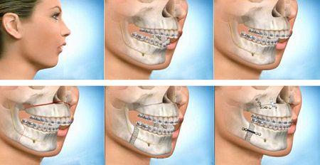nguyên nhân khiến răng hô là thế nào