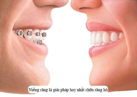 nguyên nhân khiến răng hô2