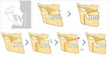 nguyên nhân răng bị hô là do đâu
