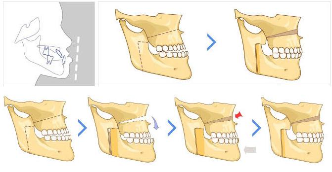 Phẫu thuật chỉnh răng hô ở đâu tốt nhất Hà Nội?