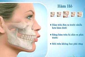 Răng hô là thế nào và khắc phục răng hô bằng cách nào hiệu quả nhất