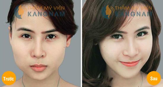 Thẩm mỹ khuôn mặt V-line 3D: Mặt đẹp như ý sau 4 tuần 2