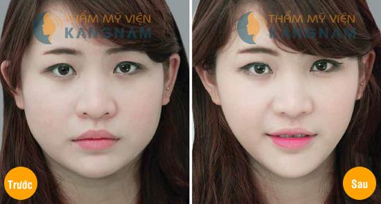 Thẩm mỹ khuôn mặt V-line 3D: Mặt đẹp như ý sau 4 tuần 3