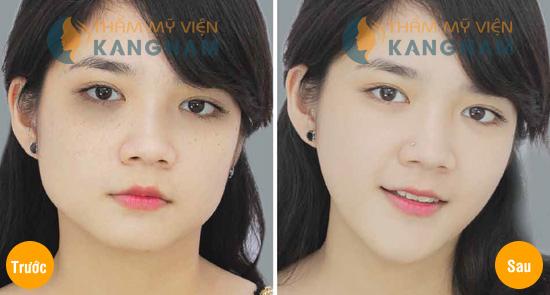 Thẩm mỹ khuôn mặt V-line 3D: Mặt đẹp như ý sau 4 tuần 4