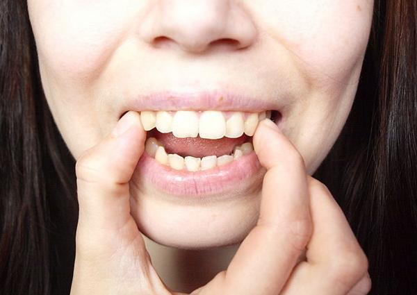 nắn chỉnh răng vẩu
