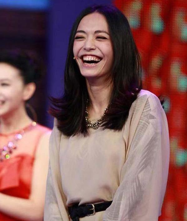 Những ngôi sao được khuyên nên tiết chế nụ cười hở lợi của mình 1