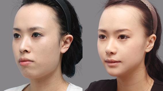 Phẫu thuật gọt hàm hô lấy lại khuôn mặt cân đối, hài hòa 11