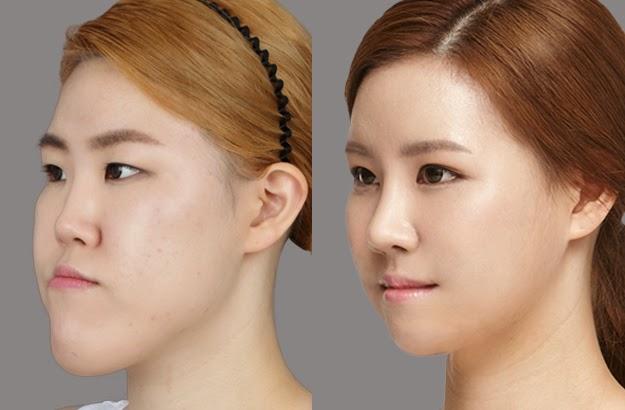 Răng đẹp, khuôn hàm cân đối sau phẫu thuật chỉnh hô vẩu 3