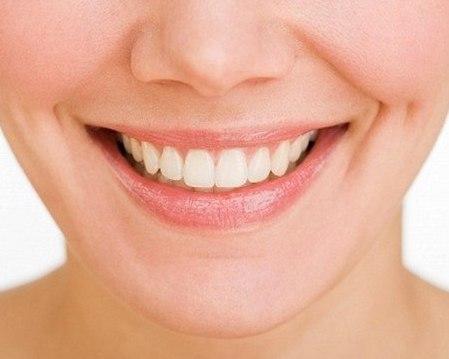 Thực tế có mẹo làm răng hết vẩu hiệu quả? 1