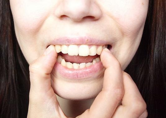 Thực tế có mẹo làm răng hết vẩu hiệu quả? 3