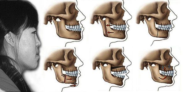 Mô hình chỉnh hàm hô móm để có được hàm răng đẹp