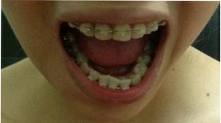 Mẹo chữa răng vẩu tại nhà có hiệu quả không? 22