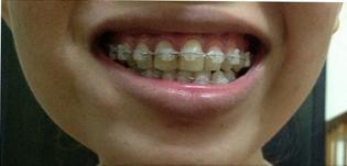 Mẹo chữa răng vẩu tại nhà có hiệu quả không? 3