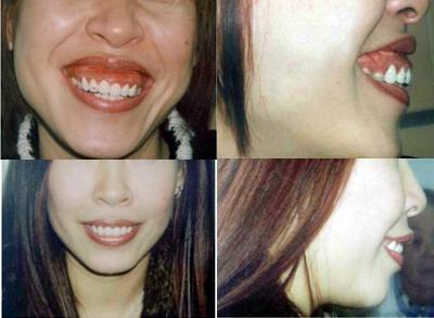 Phẫu thuật hàm hô không cần niềng răng có hiệu quả không? 1