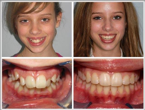 Chữa răng vẩu nhẹ bằng cách nào hiệu quả? 1