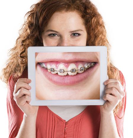 Làm gì khi răng hô khiến khuôn mặt kém xinh? 1