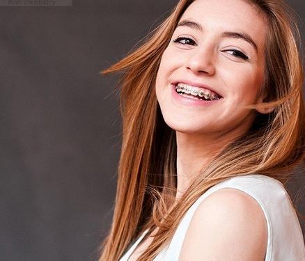 Làm gì khi răng hô khiến khuôn mặt kém xinh? 2