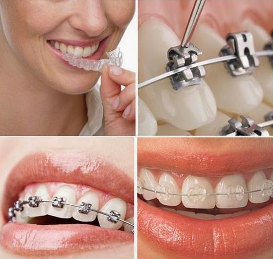 Có chỉnh hàm lệch bằng niềng răng được không?