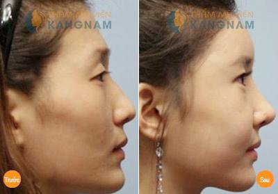 Khuyến mãi thẩm mỹ khuôn mặt tiết kiệm lên đến 10 triệu đồng 4