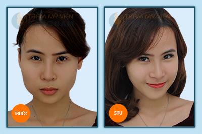 Tại Kangnam chi phí phẫu thuật thẩm mỹ khuôn mặt có đắt không? 2
