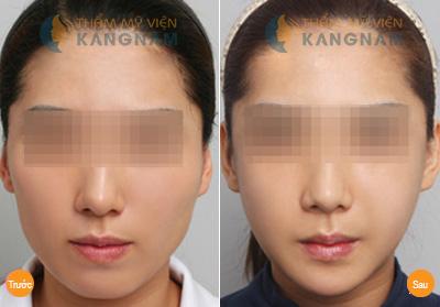 Tại Kangnam chi phí phẫu thuật thẩm mỹ khuôn mặt có đắt không? 4