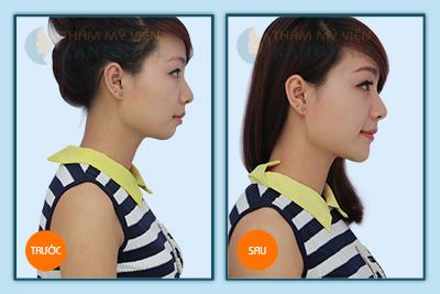 Khách hàng Kangnam chia sẻ cách khắc phục cằm ngắn hiệu quả nhất