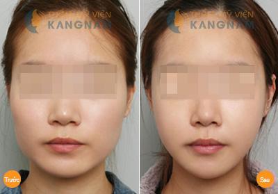 got cam han quoc gia bao nhieu tien7 Cho hỏi Phẫu thuật gọt cằm Hàn Quốc giá bao nhiêu tiền?
