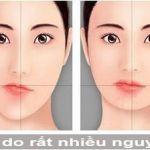 Phẫu thuật độn cằm lệch và những KIẾN THỨC bạn cần nắm chắc