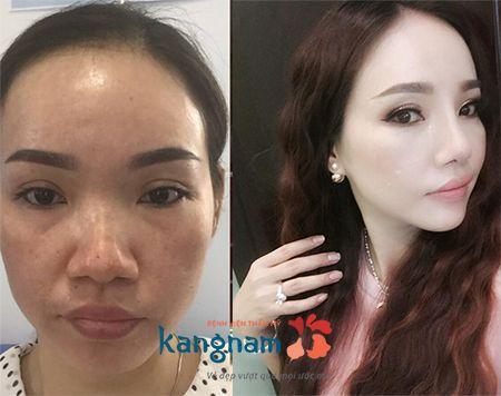 Kết quả phẫu thuật độn cằm lệch tại BVTM Kangnam