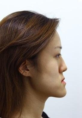 Mặt lưỡi cày khắc phục bằng cách nào? 2