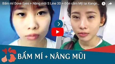 Cận cảnh kết quả phẫu thuật Bấm mí Dove Eyes - Nâng mũi S Line 3D - Độn cằm Mỹ tại Kangnam