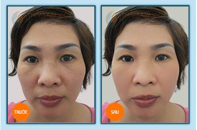 Lý do bạn nên làm đầy khuôn mặt bằng cấy mỡ? 4