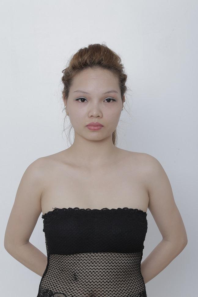 Câu chuyện Gọt mặt của cô nàng DJ tại Bệnh viện Thẩm mỹ Kangnam 3