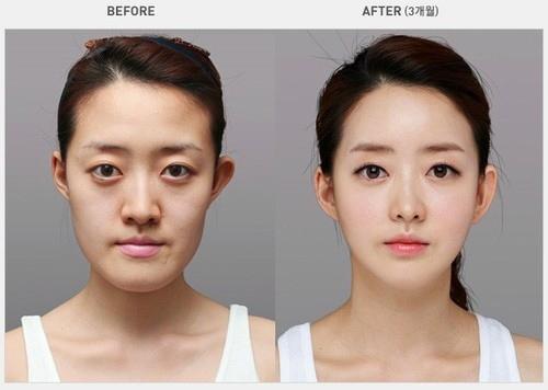 Chỉnh hình khuôn mặt: Đẹp hoàn hảo, cân đối trọn đời 4