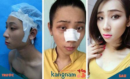 (Các hình ảnh trên là từ các khách hàng trước đây của Kangnam, hiệu quả đối với các trường hợp cụ thể khác có thể khác nhau)
