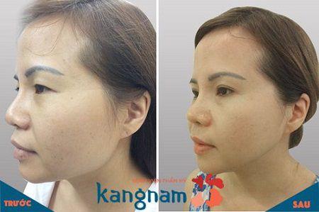 (Các hình ảnh trên là từ các khách hàng trước đây của Kangnam, hiệu quả đối với các trường hợp cụ thể khác có thể khác nhau)1